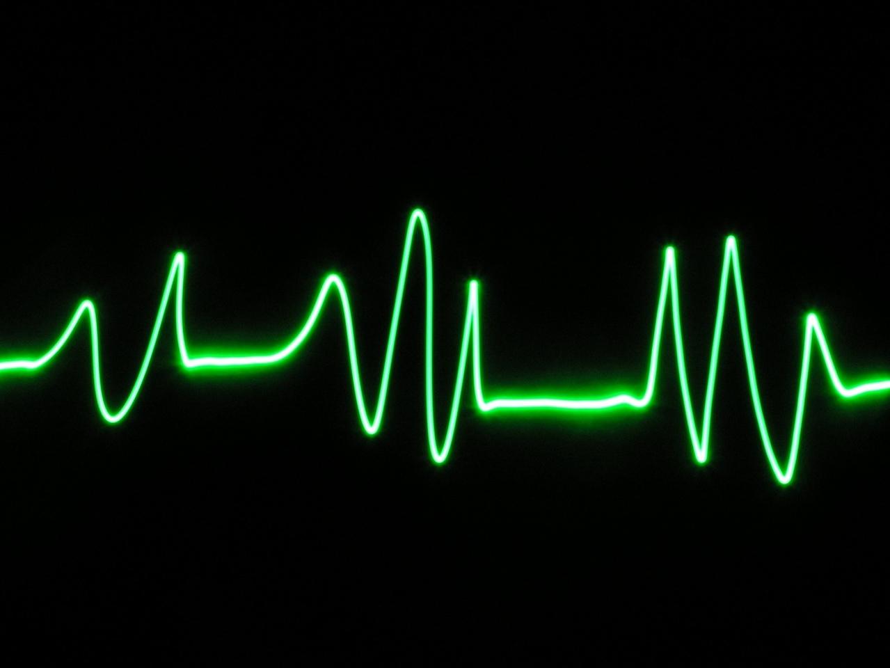 Morte improvvisa nei giovani, lo rivela una cicatrice sul cuore
