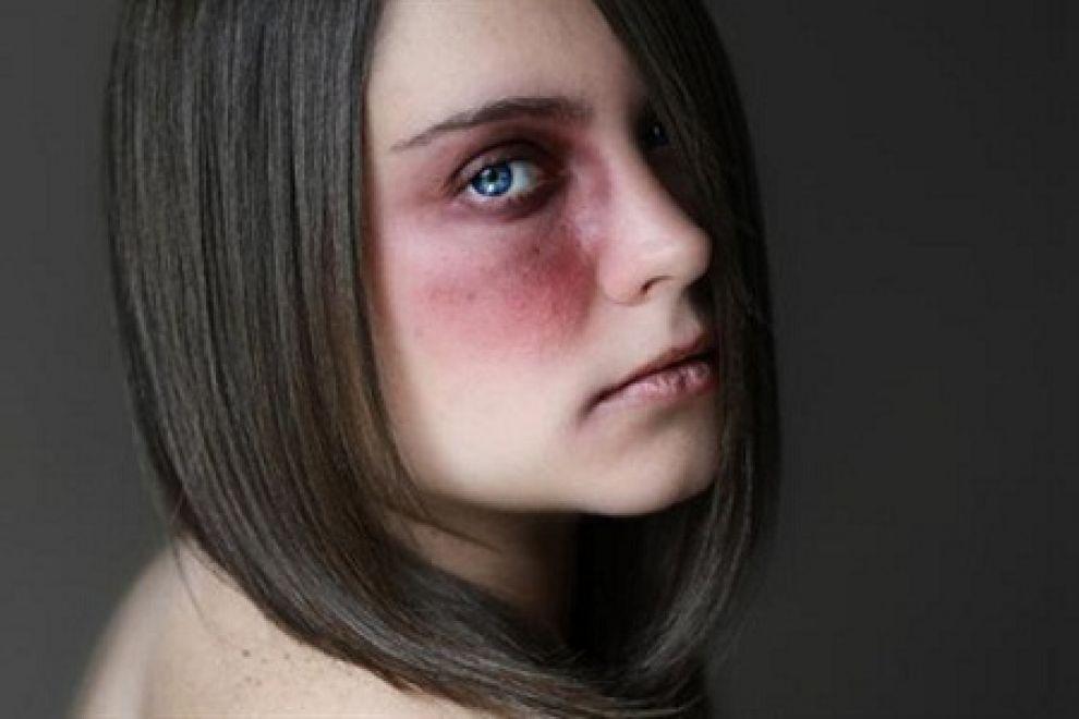 Violenze per 24 anni dal marito: nessun mantenimento